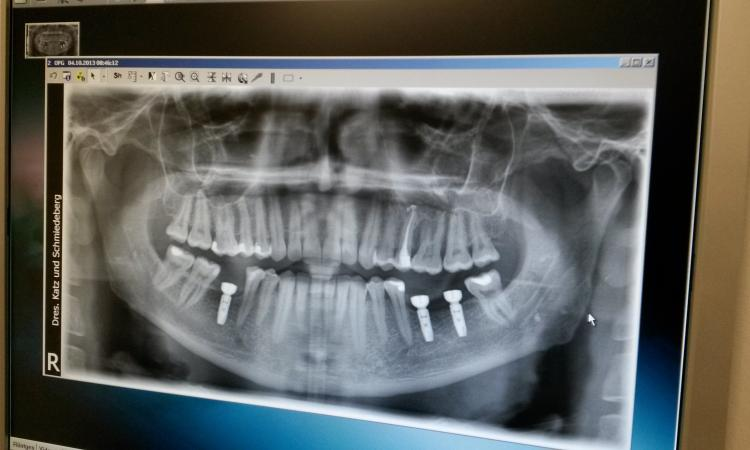 7ad10407a93d5 Зубные протезы в Германии