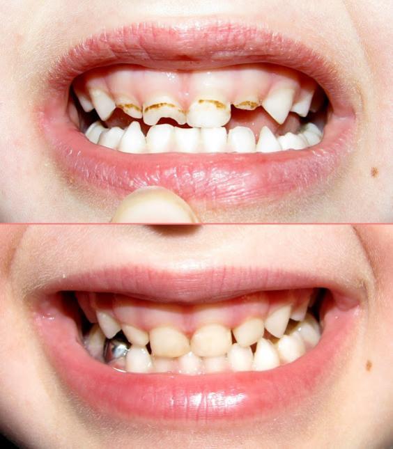Результат посещения детского стоматолога в Германии